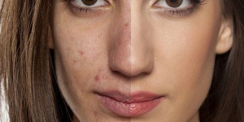 acne and low carb