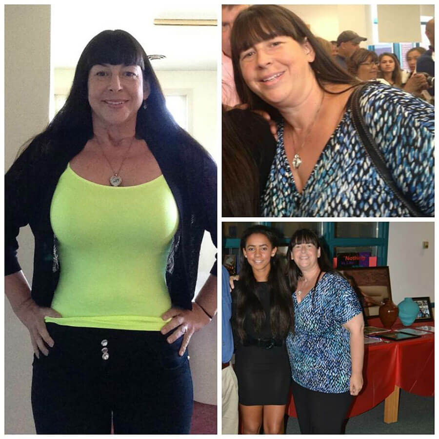 Sue Lost 96 lbs in Six Months