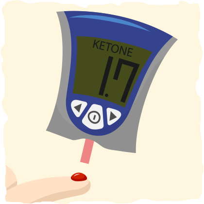 Acetoacetate and Ketosis