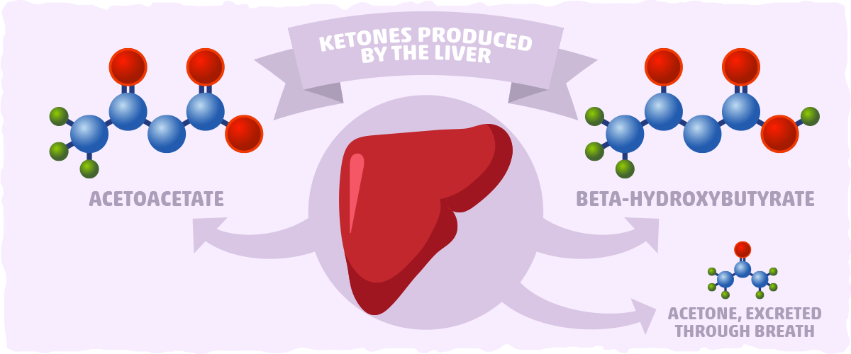 Acetoacetate — The First Ketone Our Body Produces