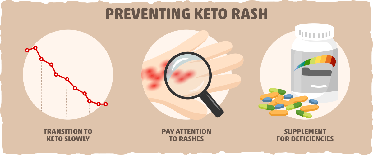 Can Keto Rash Be Prevented?