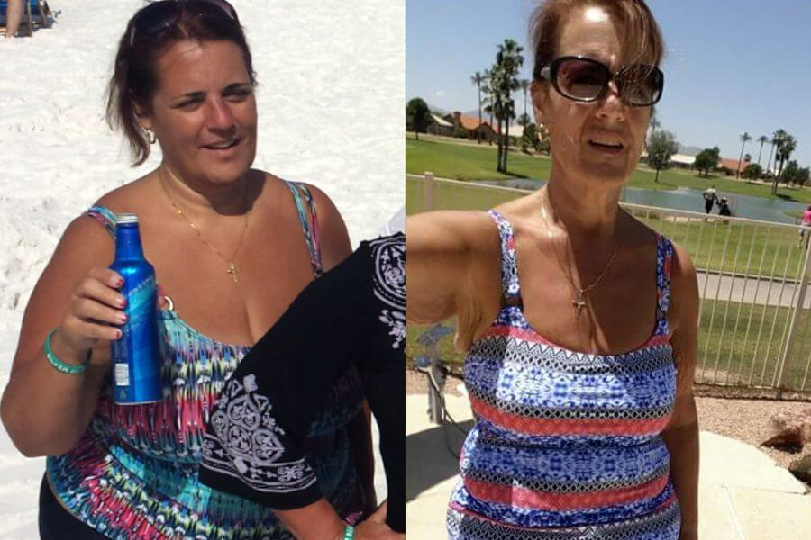 Susan Lost 85 Lbs and Stopped Her Stomach Issues